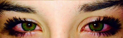 subconjunctival hemorrhage & contact lenses