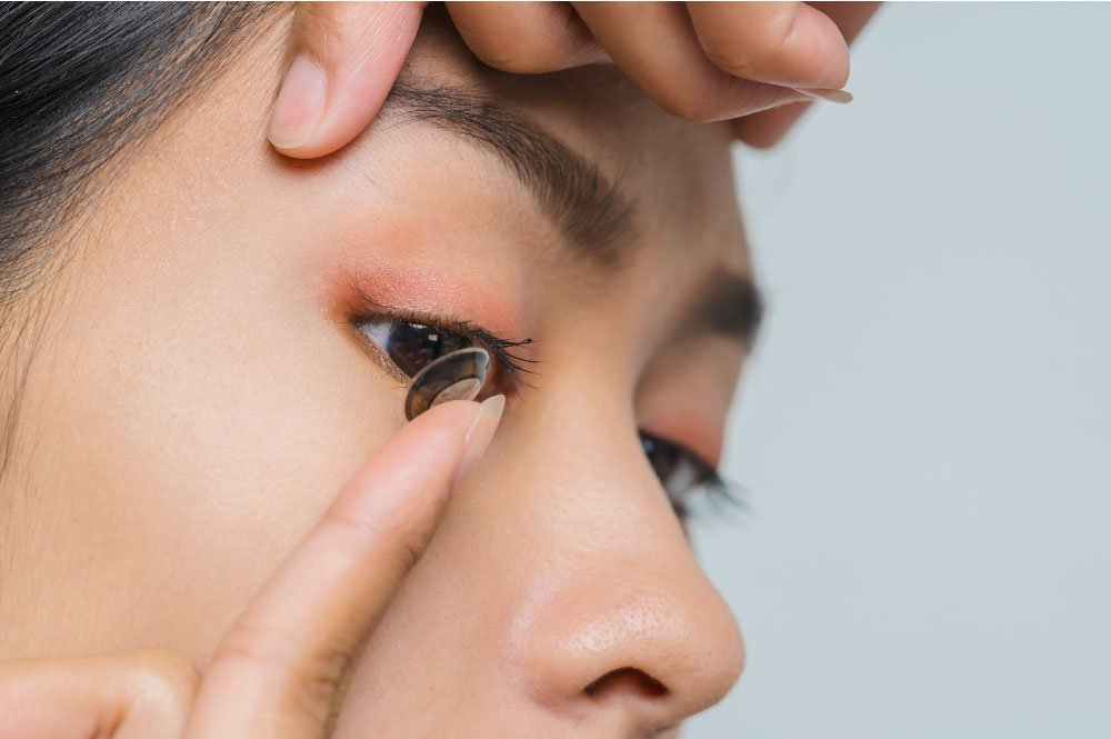 Don't rush to put on colored contacts after lasik
