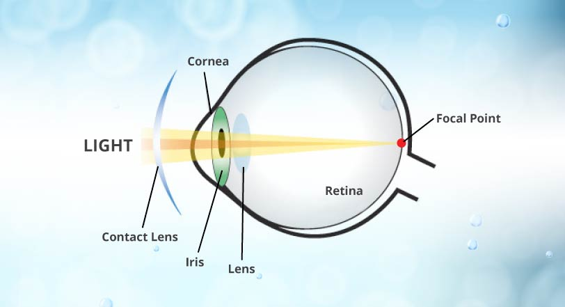 how do contact lens work