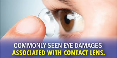 contact lens eye damages