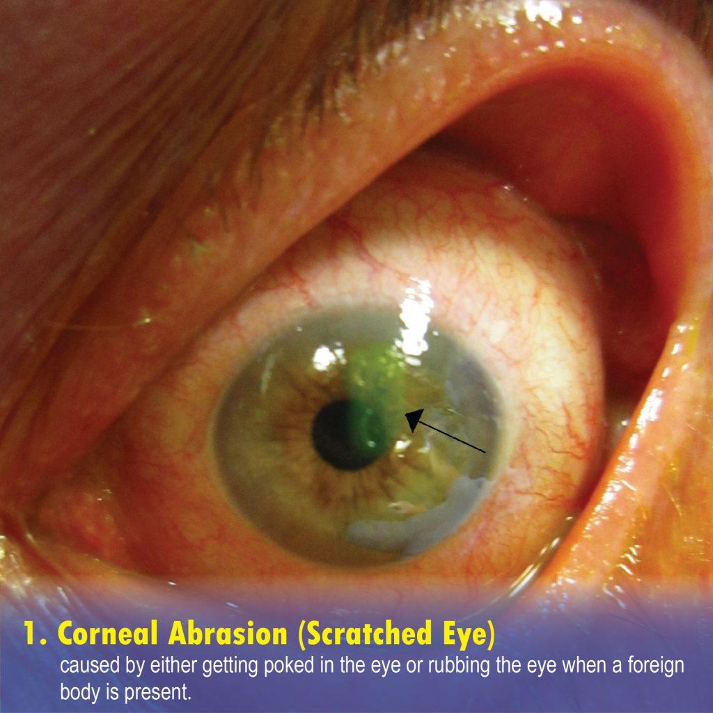 Corneal Abrasion (Scratched Eye)