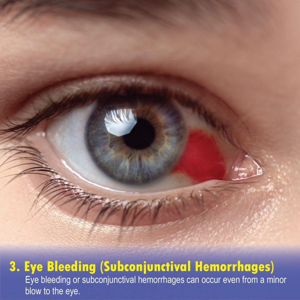Eye Bleeding (Subconjunctival Hemorrhages)