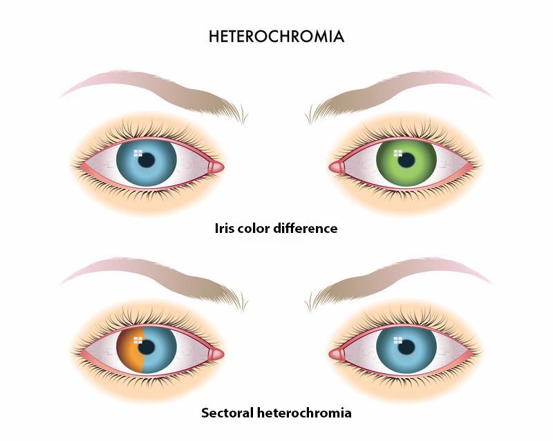 Two types of Heterochromia