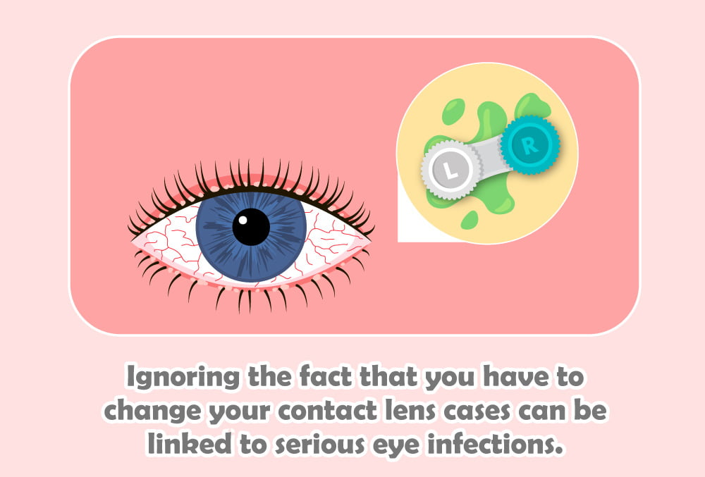 ignoring the fact that you have to change your contact lens cases can be linked to serious eye infections.